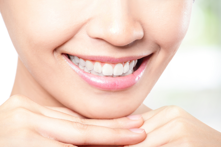 The Benefits of Professional Teeth Whitening